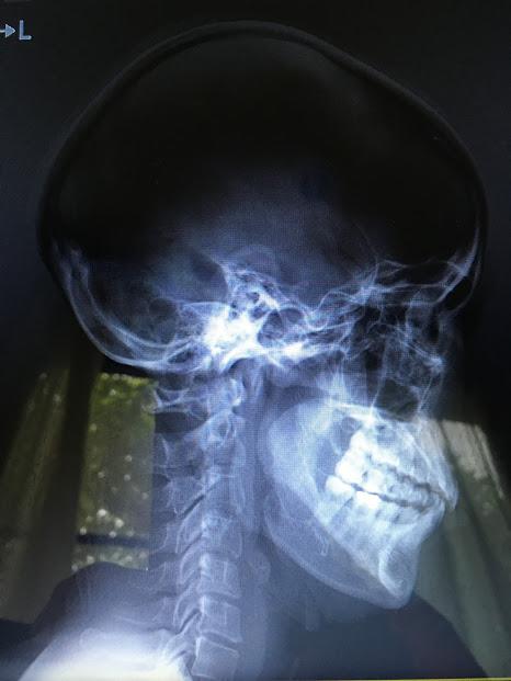 moeの頸椎